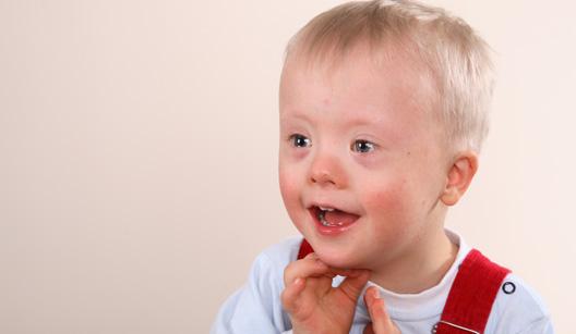 menino com síndrome de down
